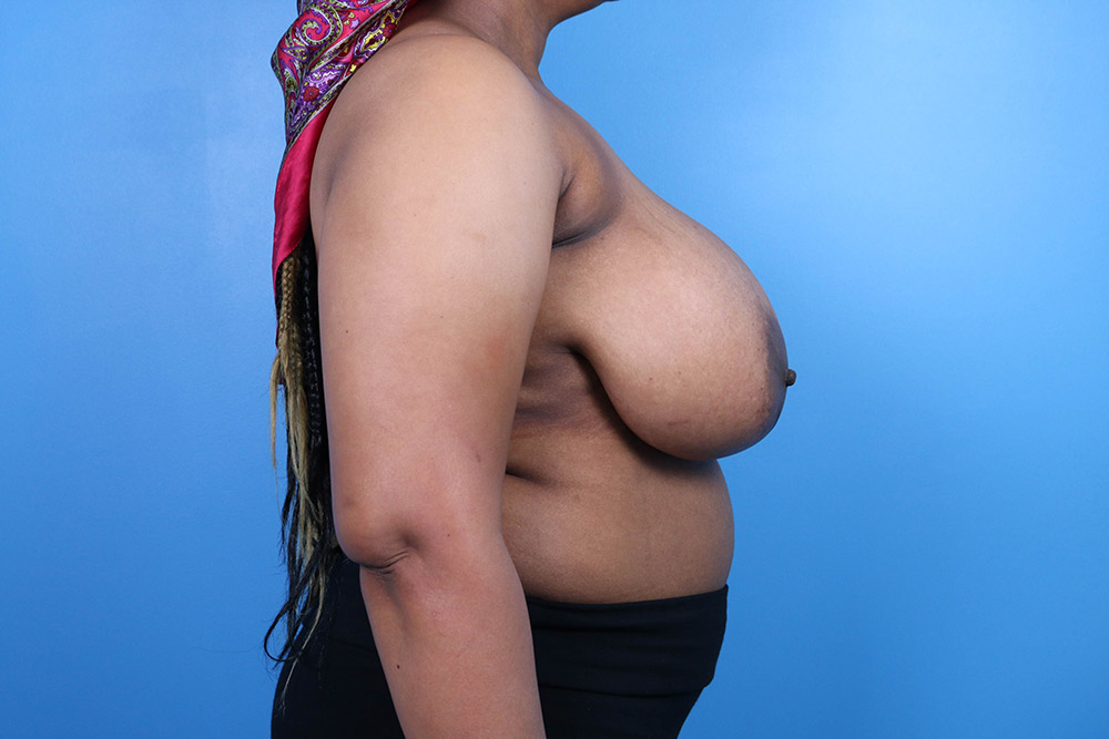 breast reduction plastic surgery in raleigh