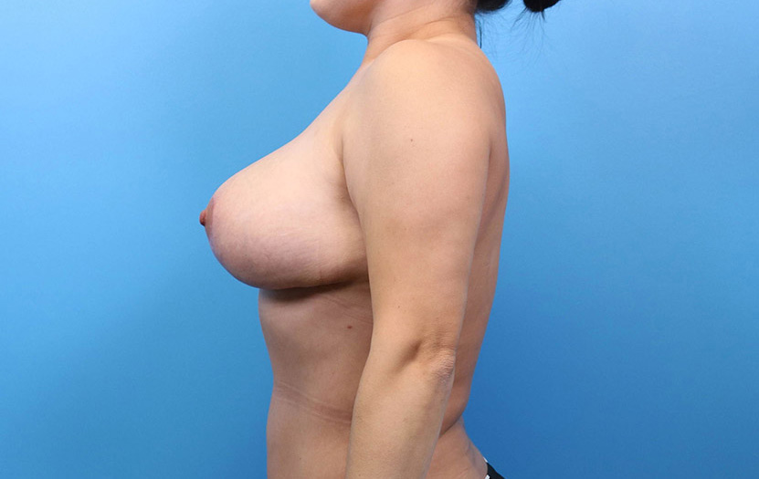results from a breast lift procedure in raleigh nc