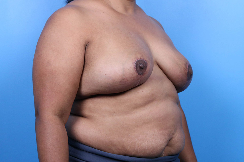 breast implant revision surgery raleigh after