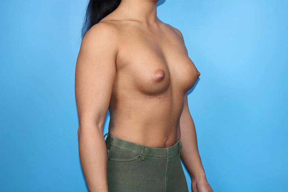 breast implant revision in raleigh