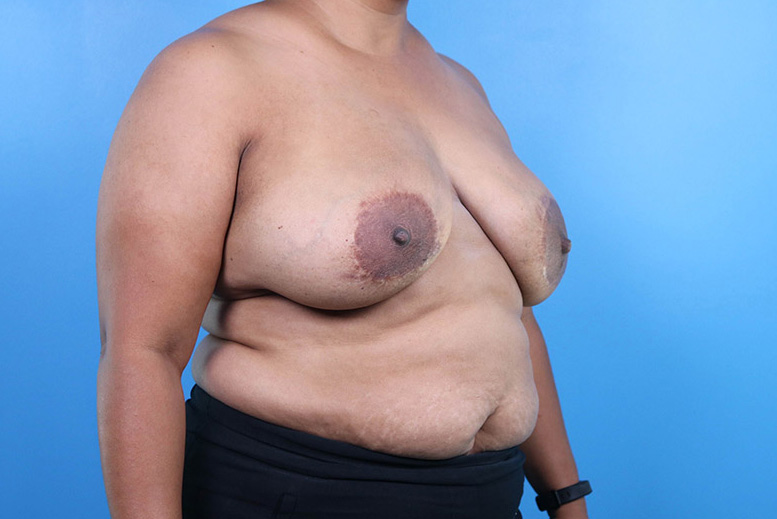raleigh breast implant revision