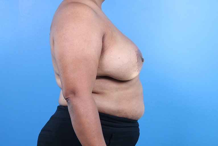 breast implant revision before and after
