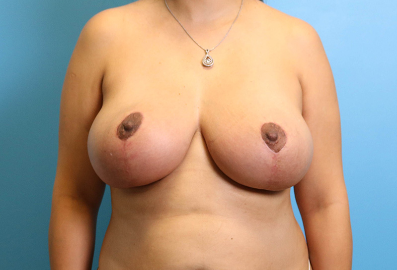 breast lift surgery results in raleigh