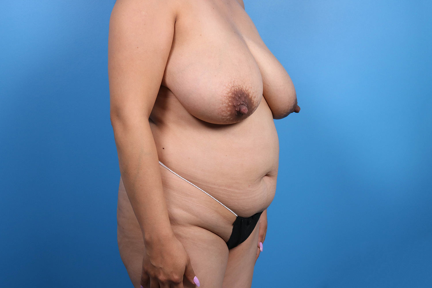 tummy tuck surgery Raleigh before results 2