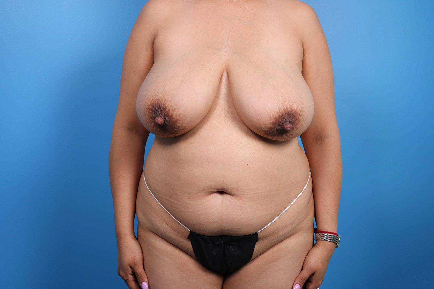 tummy tuck surgery Raleigh before results