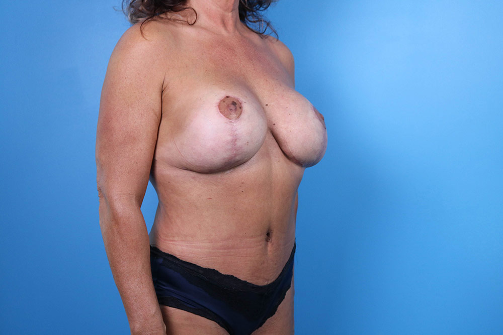 menopause makeover after photos