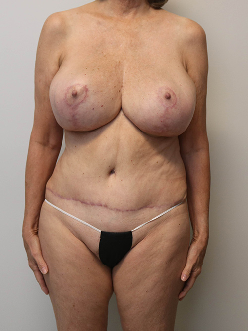 results of menopause makeover
