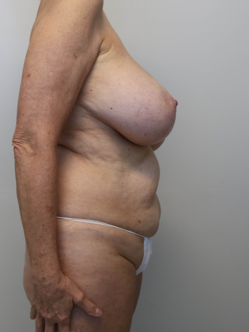 menopause makeover surgery in raleigh