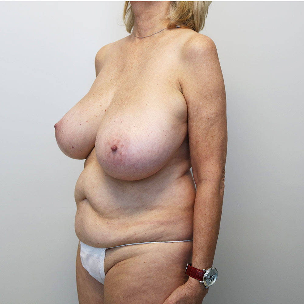 menopause makeover raleigh before