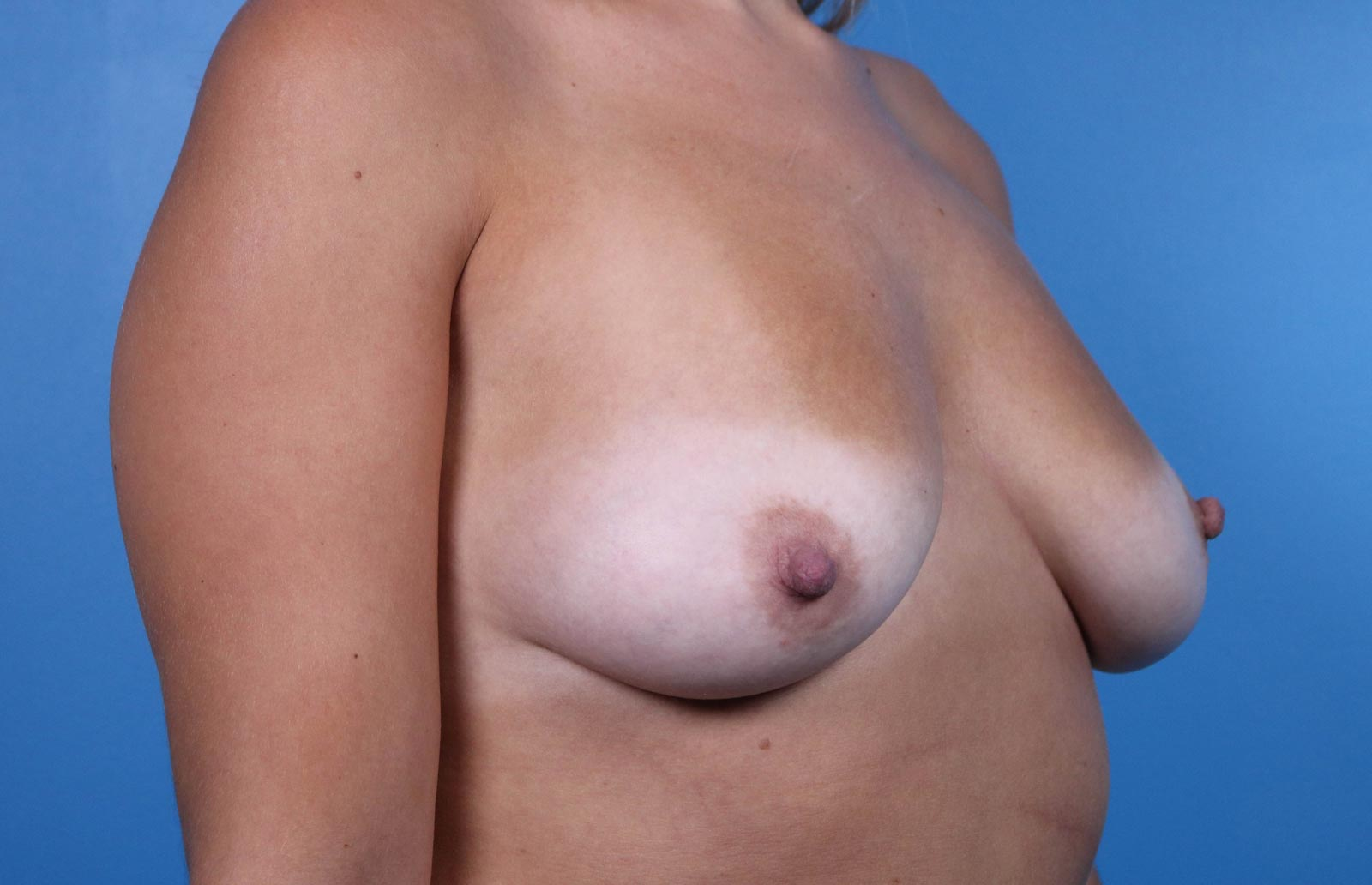 Raleigh breast augmentation before image