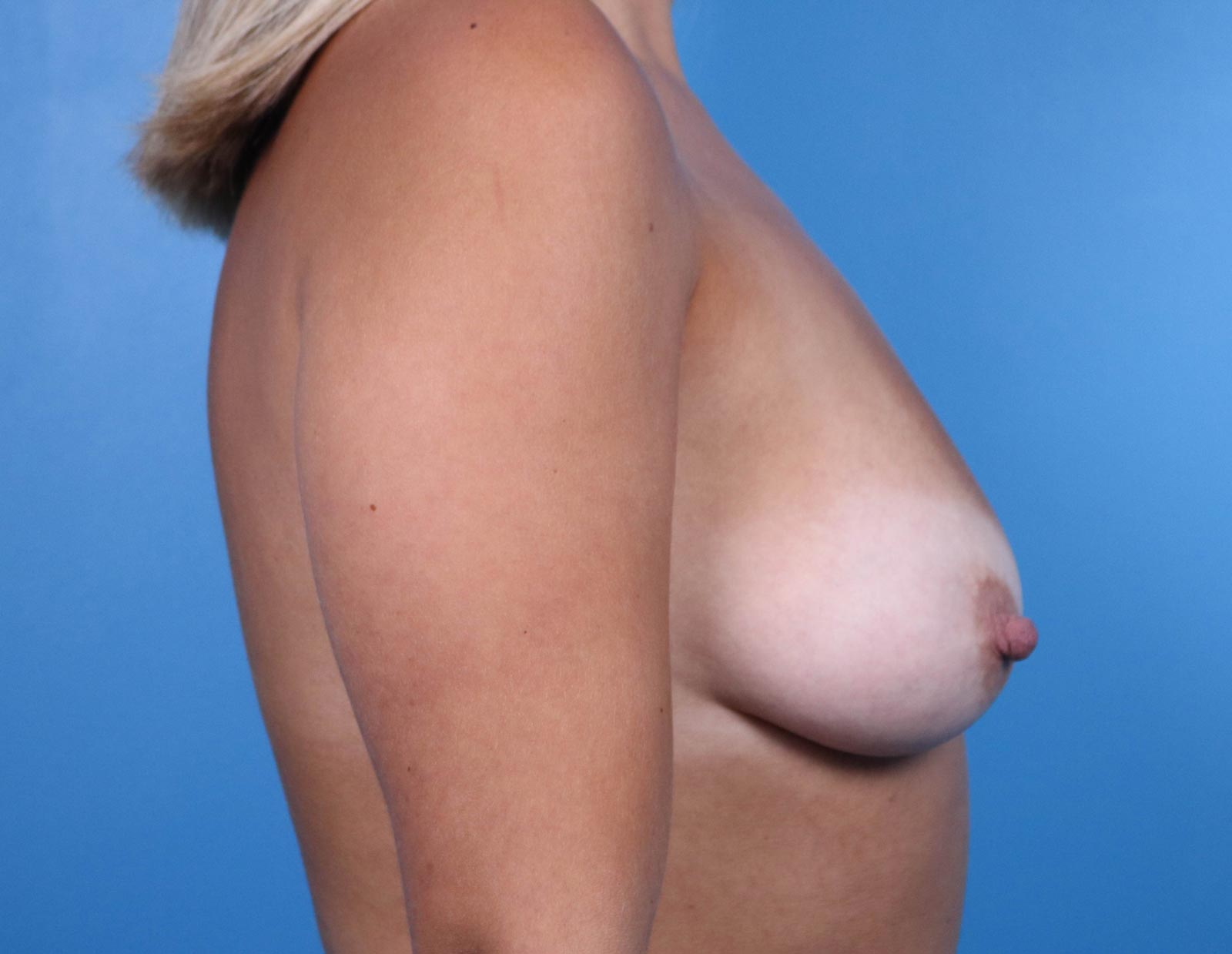 Breast Augmentation before image