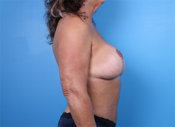 Menopause Makeover in Raleigh