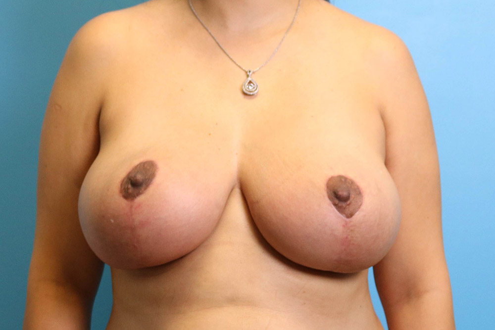 nipple reduction in raleigh