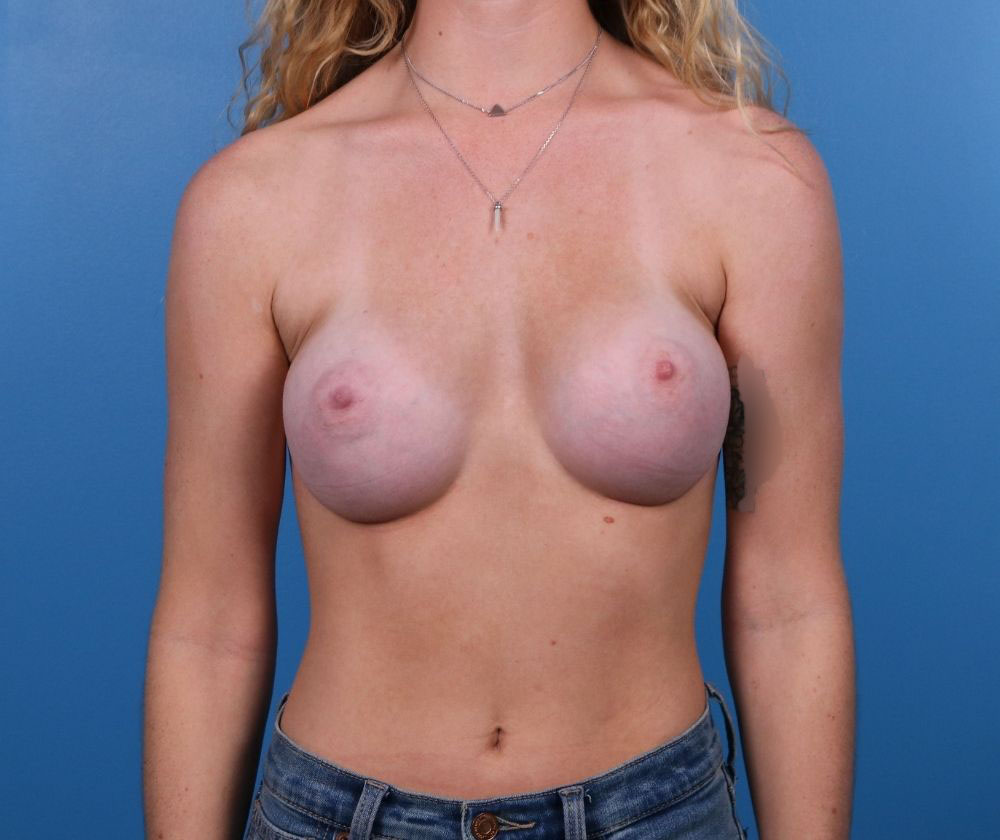 Raleigh breast augmentation surgery after