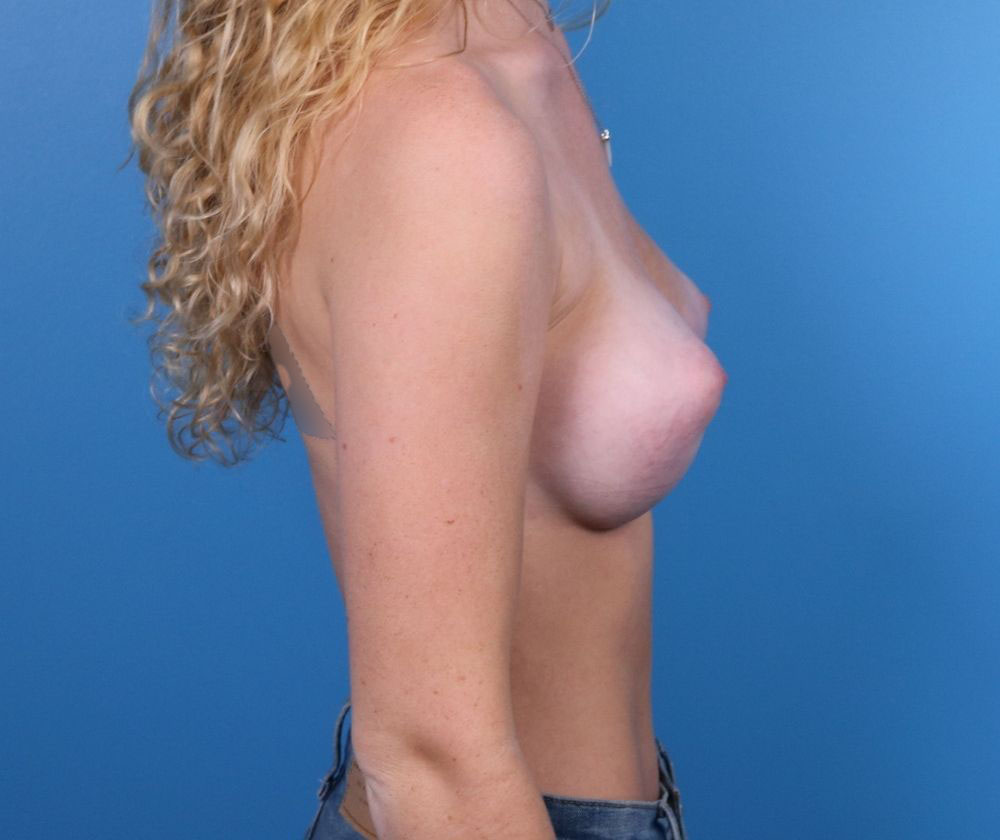 Raleigh breast augmentation after procedure
