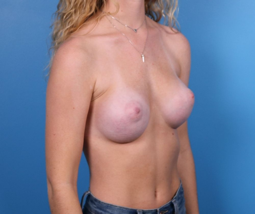 Raleigh breast augmentation surgery after surgery