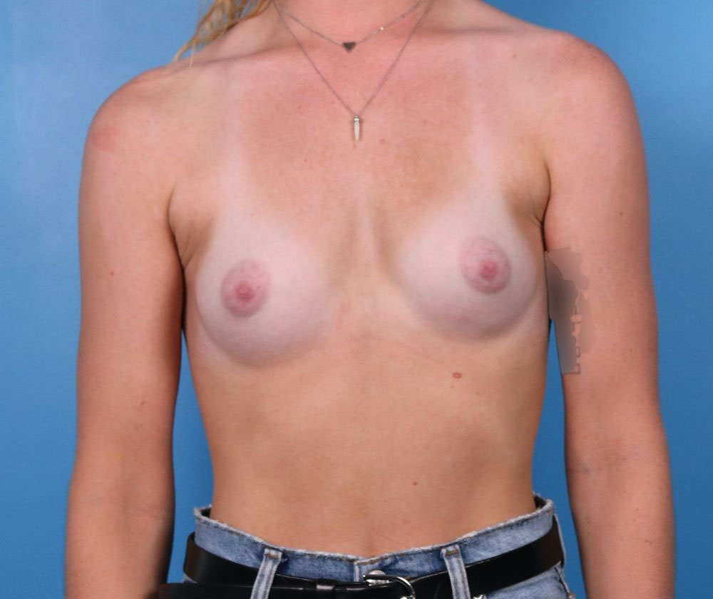 Raleigh breast augmentation surgery before procedure