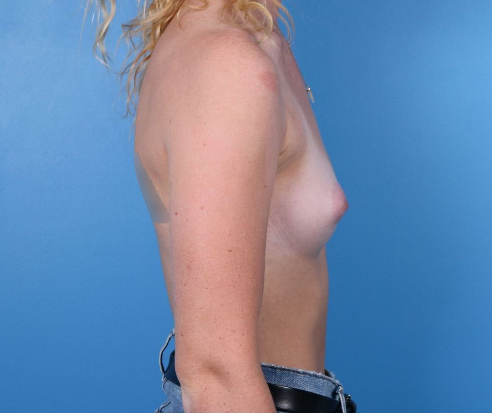 Raleigh breast augmentation surgery before