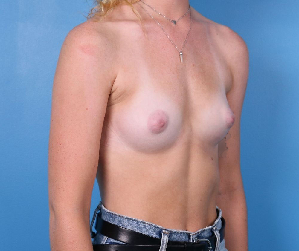 Raleigh breast augmentation surgery before surgery