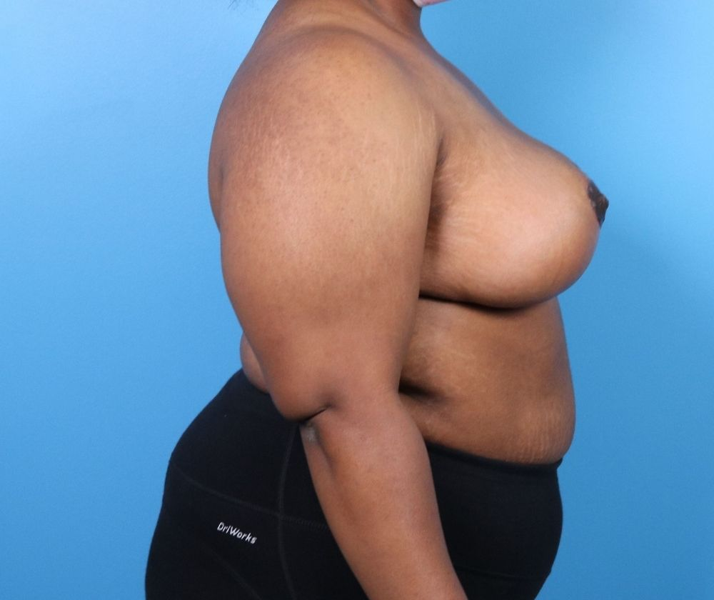 Raleigh breast reduction surgery after