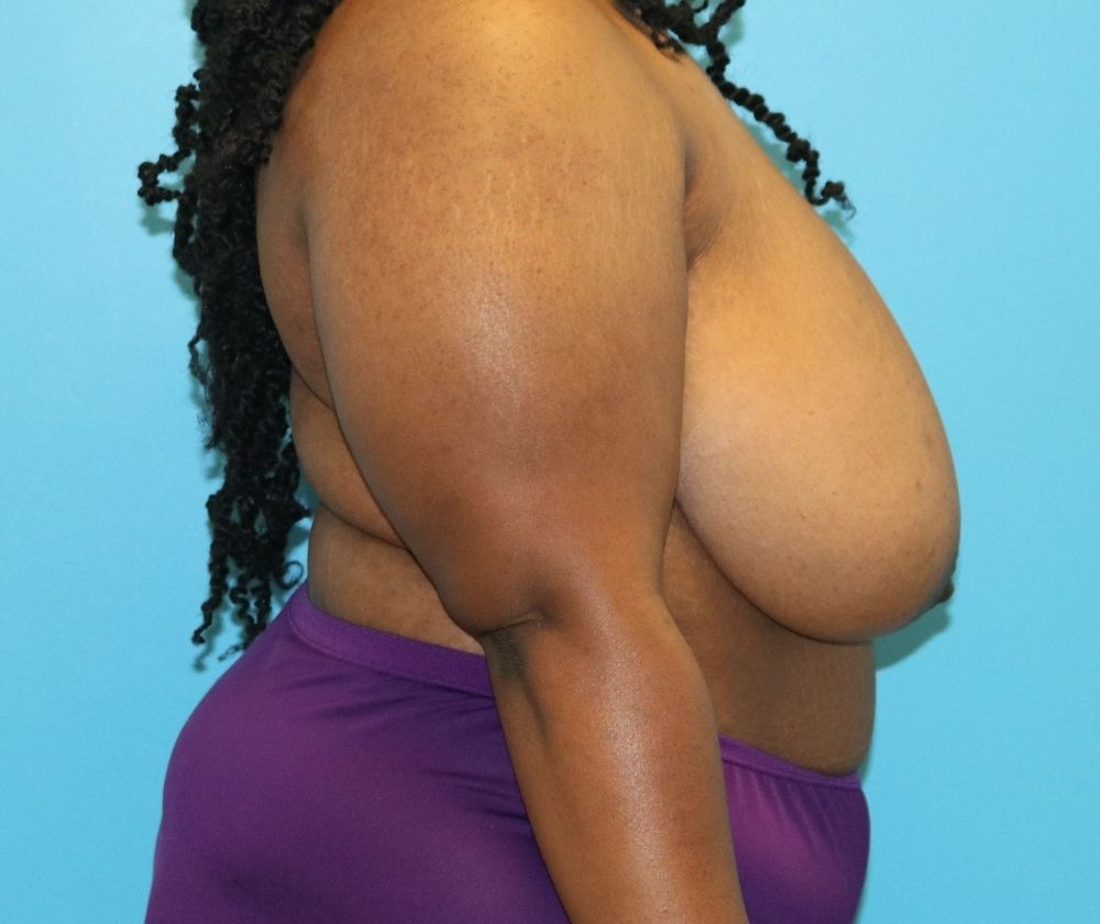 Raleigh Breast Reduction Surgery before surgery
