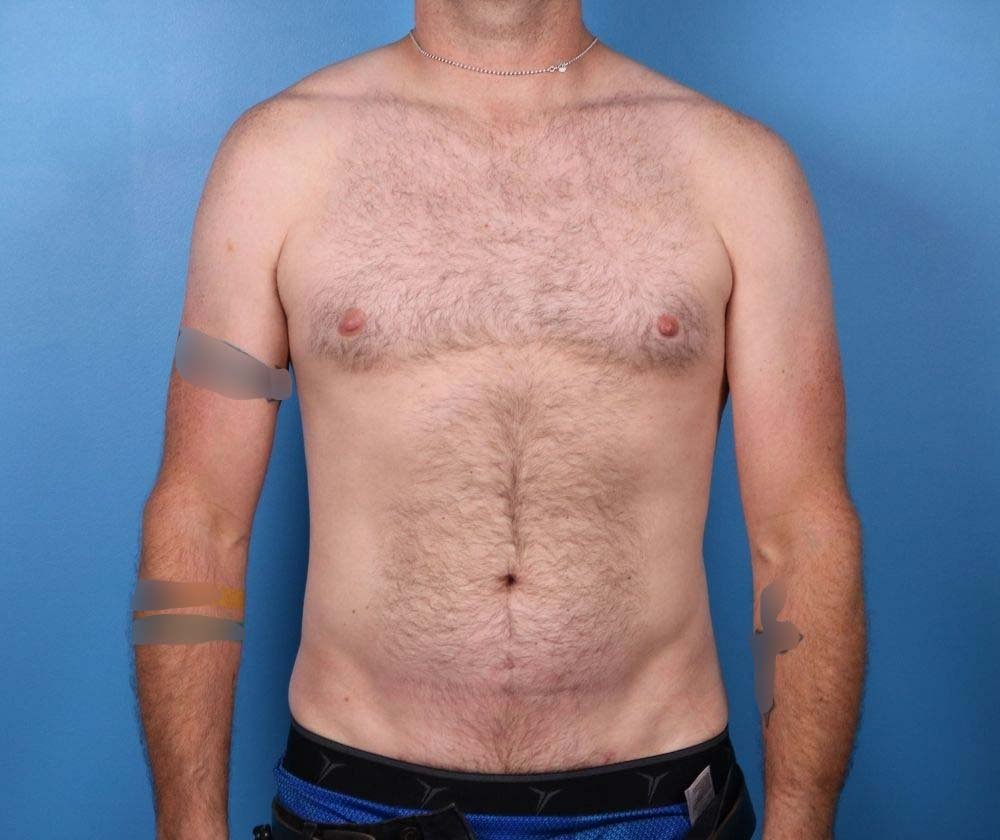 liposuction surgery raleigh After surgery