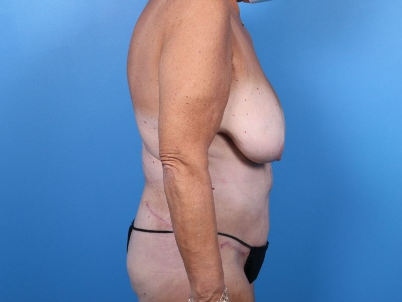 Liposuction Raleigh after surgery results