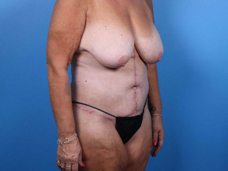 Raleigh liposuction after surgery image