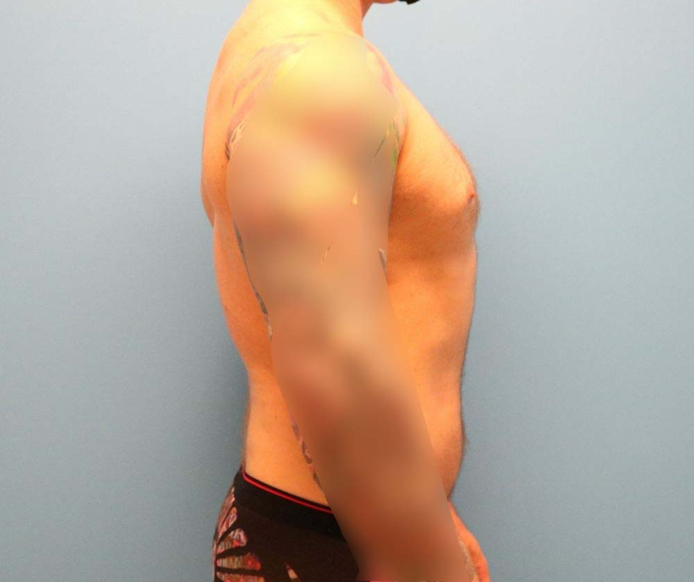 Lipo for men in Raleigh NC
