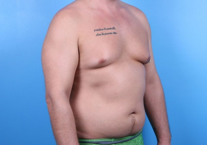 Raleigh Male Liposuction surgery before proceedure