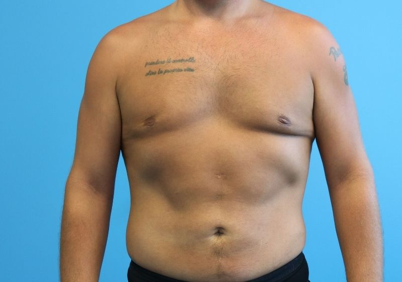 Raleigh Male Liposuction surgery after proceedure