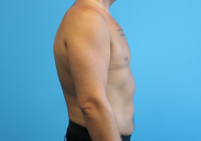 Raleigh Male Liposuction after surgery