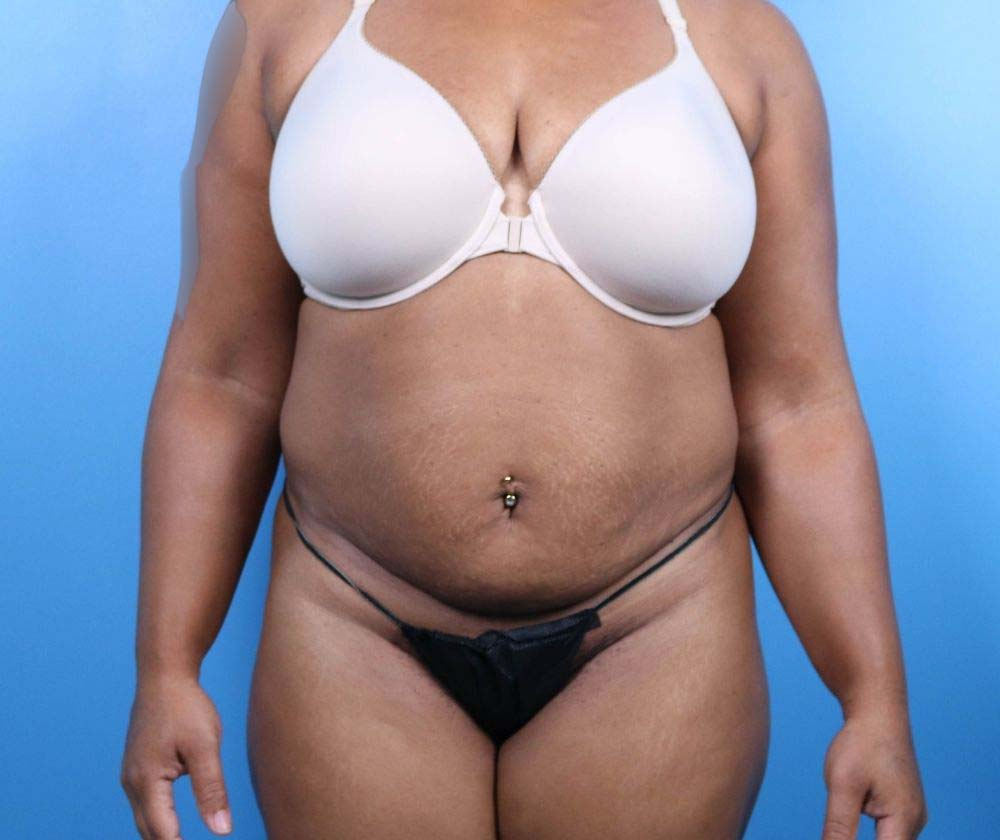 Raleigh Tummy Tuck Surgery Before Procedure