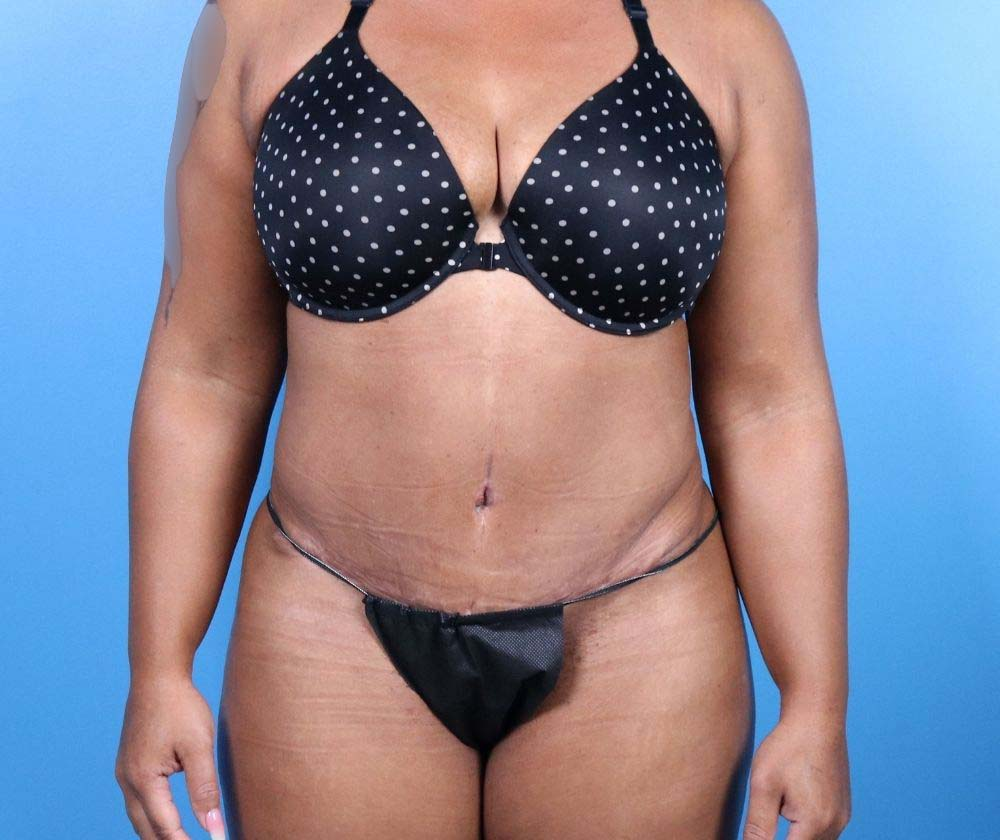 Raleigh Tummy Tuck Surgery After Procedure front
