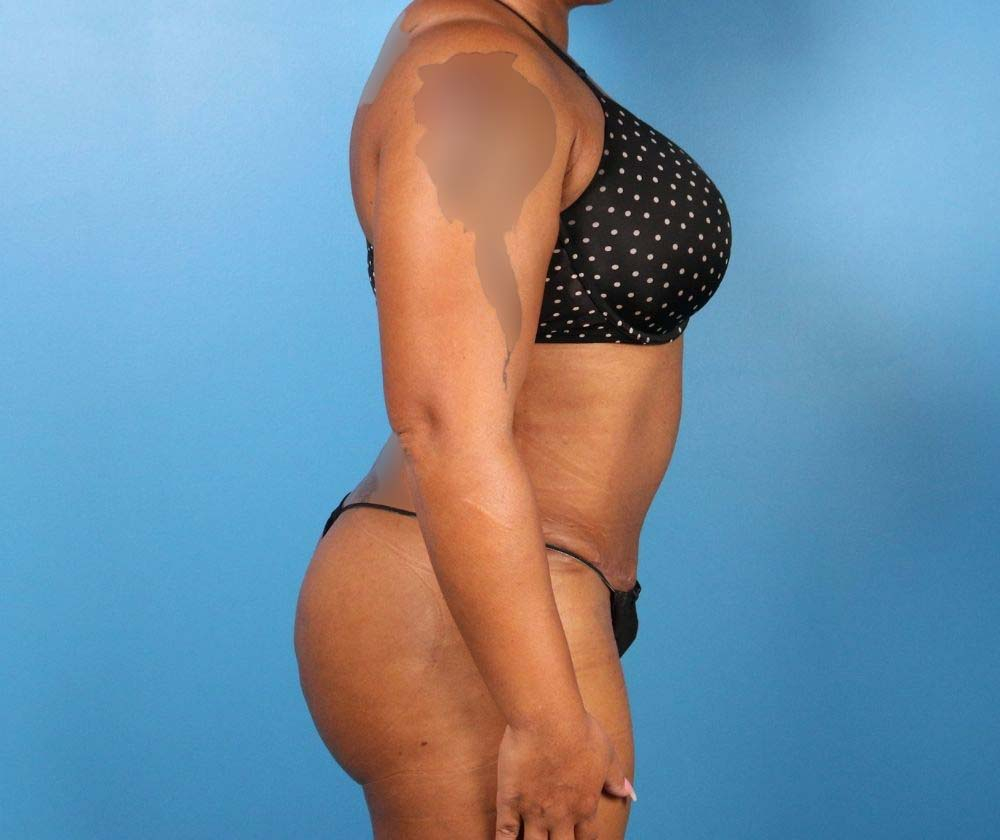Raleigh Tummy Tuck Surgery After Procedure Profile