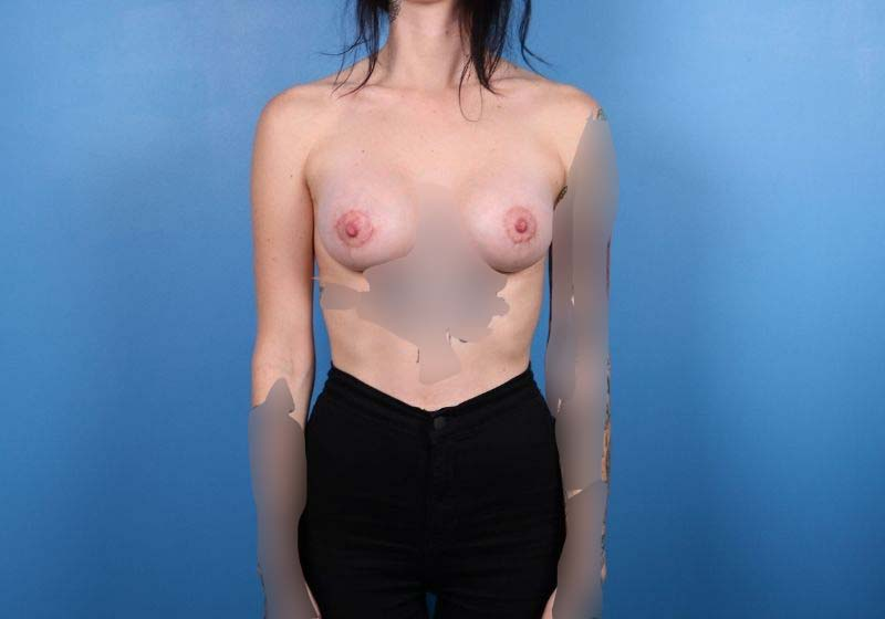 Raleigh Breast Augmentation surgery- after Procedure