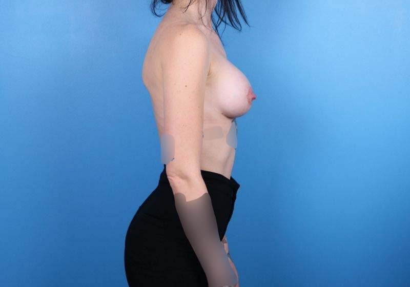 Raleigh Breast Augmentation surgery- after results