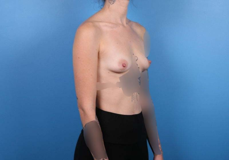 Raleigh Breast Augementation- Before Surgery