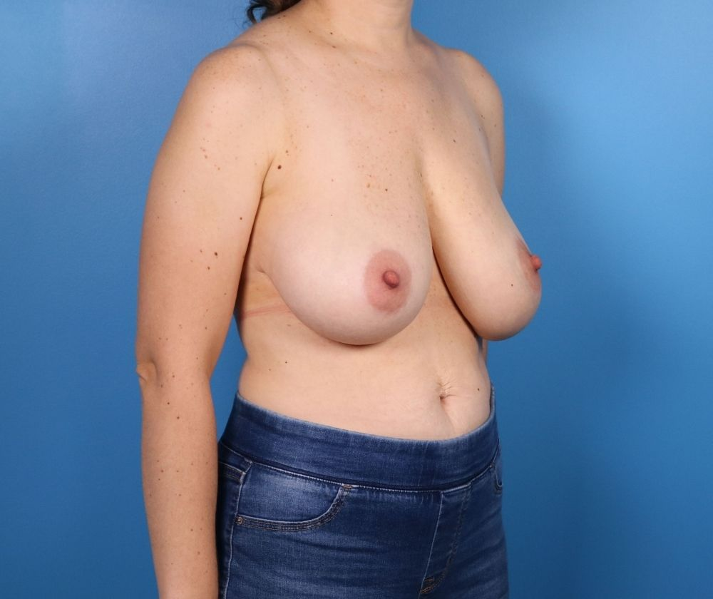 Breast Reduction Surgery Raleigh NC