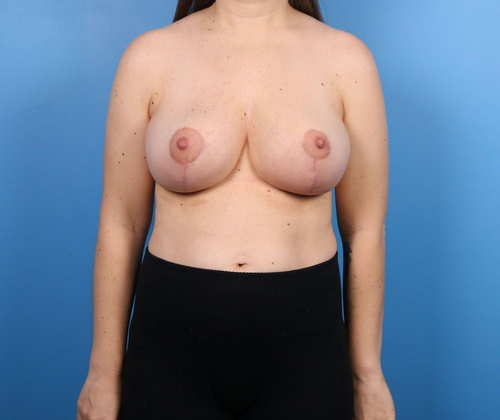 Raleigh Breast Reduction Surgery