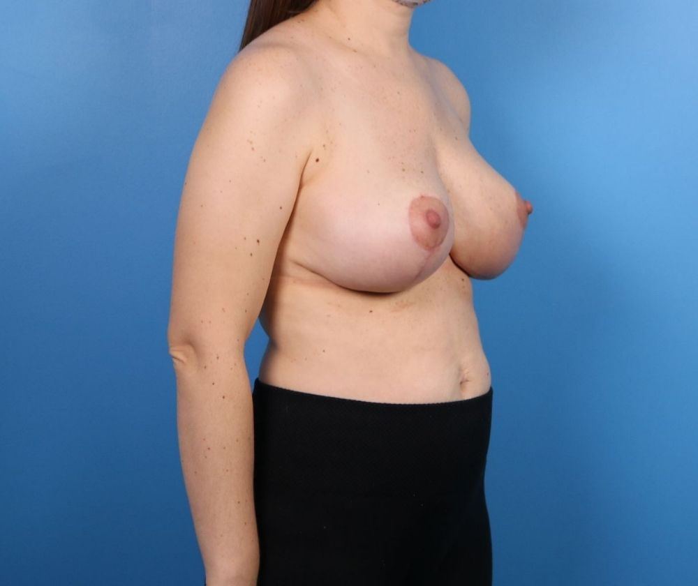 Raleigh NC Breast Reduction Surgery
