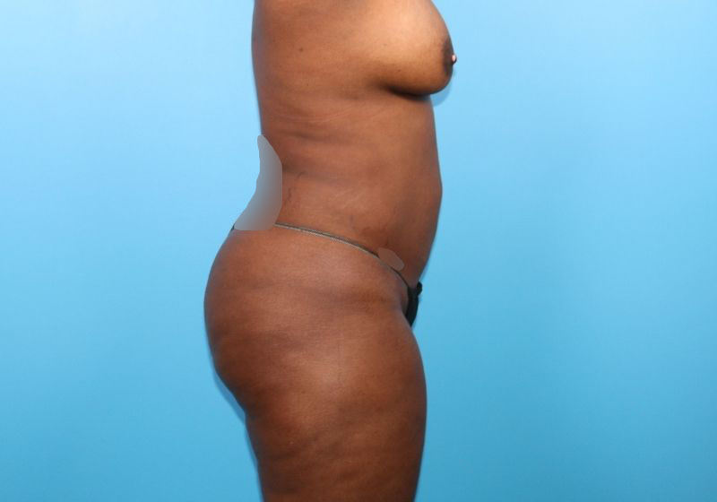 Lipo 360 Surgery Raleigh After Profile