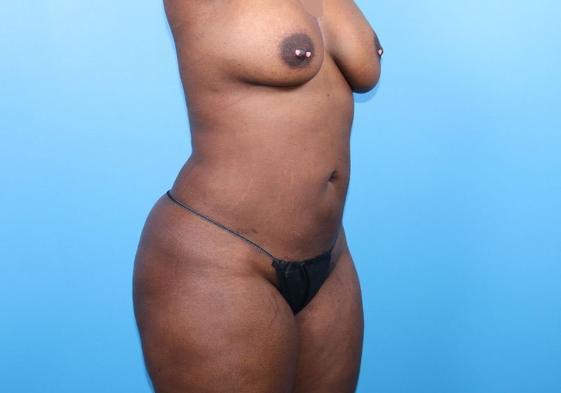 Lipo 360 Surgery Raleigh After Side