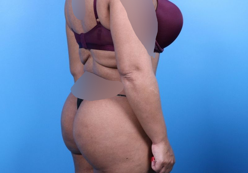 After Liposuction Surgery Raleigh Back Side