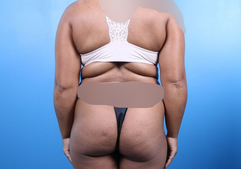 Before Liposuction Surgery Raleigh Back