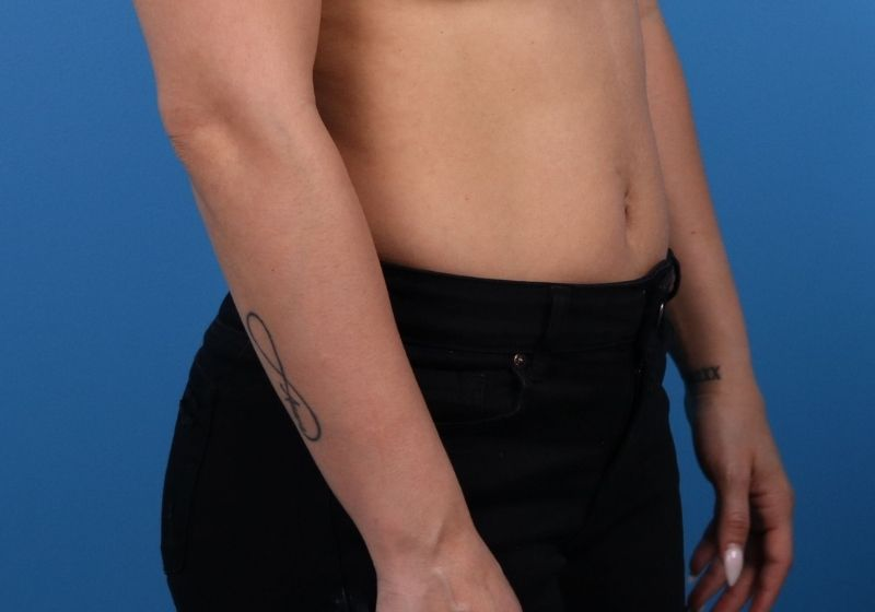 raleigh NC 360 liposuction surgery before