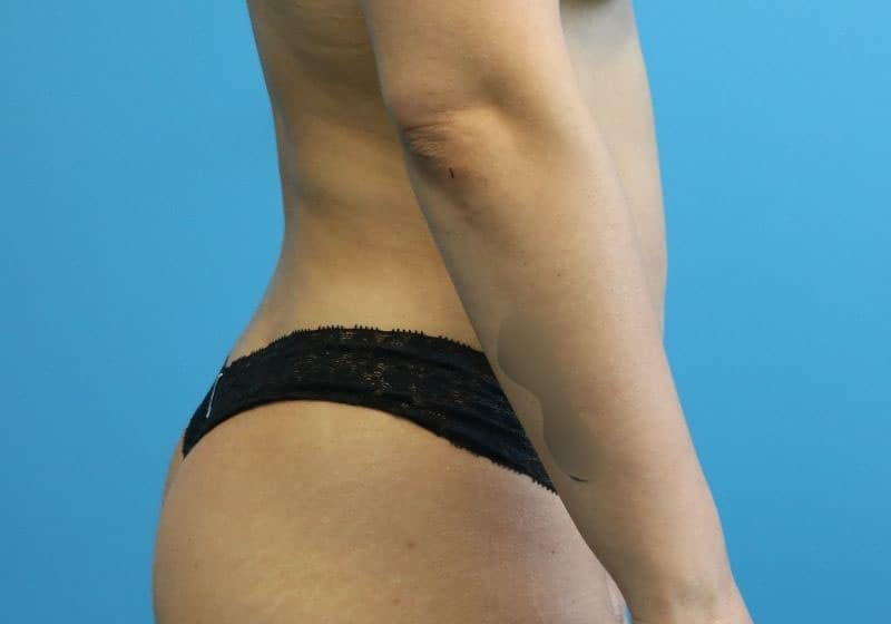 Liposuction surgery 360 after Raleigh