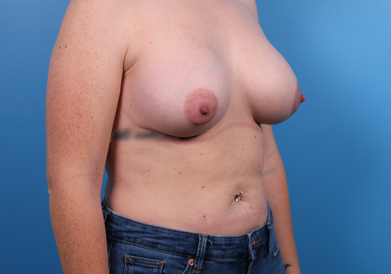 Breast Augmentation Surgery Raleigh After Front Turned