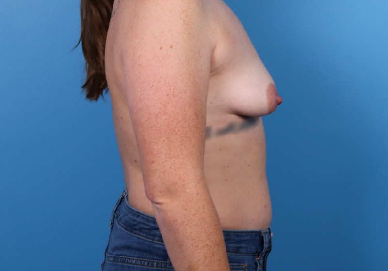 Breast Augmentation Surgery Raleigh Before Side