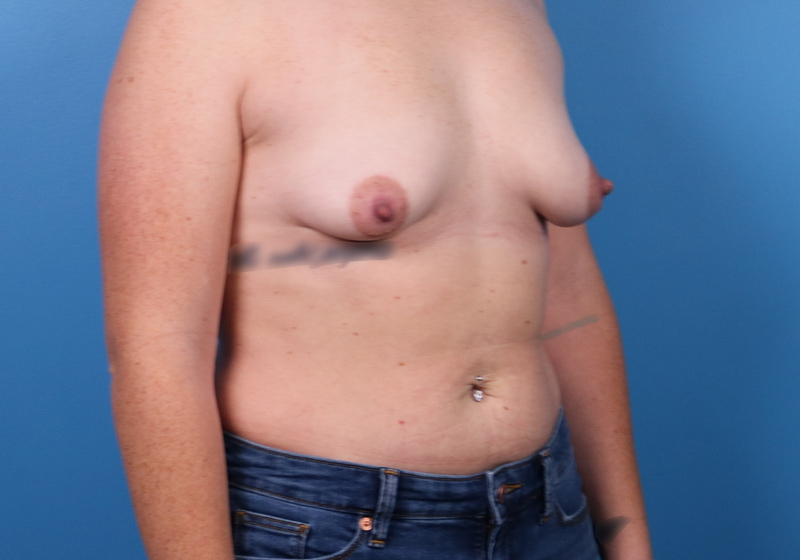 Breast Augmentation Surgery Raleigh Before Front Turned